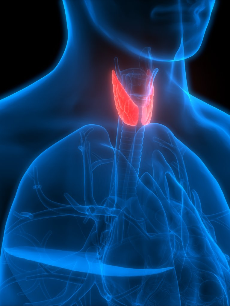 Thyroid Nodules Causes Symptoms Ent In Cayman
